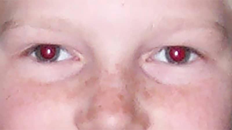 Fjerne røde øjne med Photoshop og Windows 10
